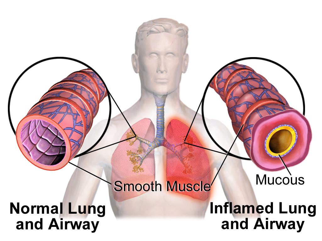 Asthma Etiology